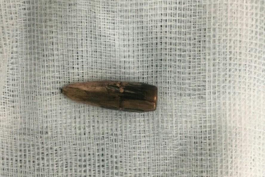 Cơ quan điều tra bước đầu xác định đầu đạn được lấy ra từ cơ thể của cháu Phong và bà Lý là đầu đạn dùng cho súng AK và có thể được dùng cho cả súng RPK, RPD, súng tiểu liên, K63, súng CKC. (Ảnh: Trần Thanh)