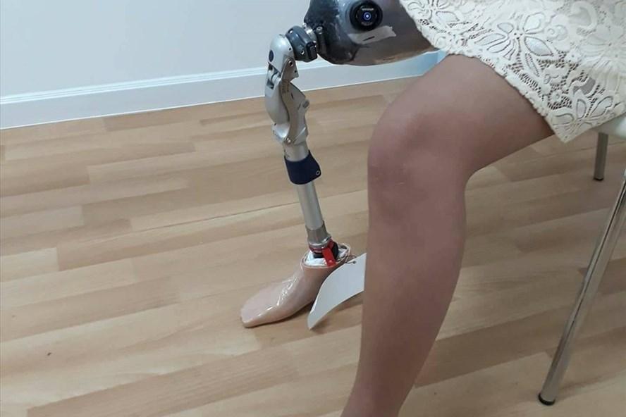 Bệnh nhân Thúy Huyền bị đoạn chi sau tai nạn, phải dùng chân giả. Ảnh: QH