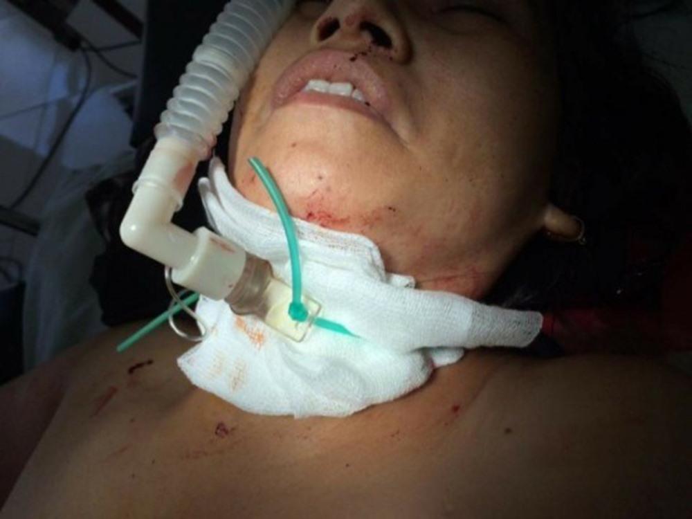 Chị Kim Anh  nhập viện trong tình trạng rất nguy kịch. Ảnh: BTN.