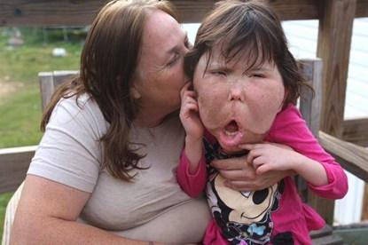 Mắc bệnh hiếm, bé gái 9 tuổi mang khuôn mặt khổng lồ