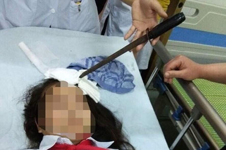 """Vụ nữ sinh bị bạn học phi dao trúng đầu: Bộ GDĐT chỉ đạo """"nóng""""  1"""