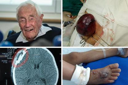 Một vòng bệnh viện: Bé 7 tuổi nguy cơ hoại tử chân do bị rắn lục cắn