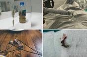 Một vòng bệnh viện: Que tránh thai đi lạc tới tim người phụ nữ