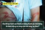 """Tin tức pháp luật 24h: Vì sao mẹ kế đánh con riêng của chồng; bố bị """"tố"""" bạo hành con lên tiếng"""