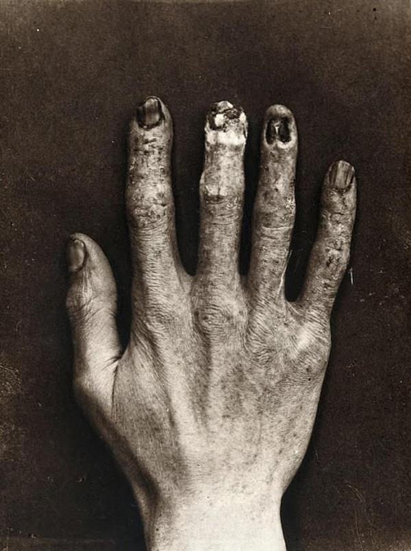Bàn tay của Dally bị bao phủ bởi những vết thương, trông như bị bỏng sau nhiều giờ phơi bức xạ tia X trong phòng thí nghiệm của Thomas Edison.
