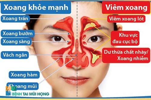 Bệnh việm xong có thể gây ra nhiều biến chứng nguy hiểm. Ảnh: benhtaimuihong.net.