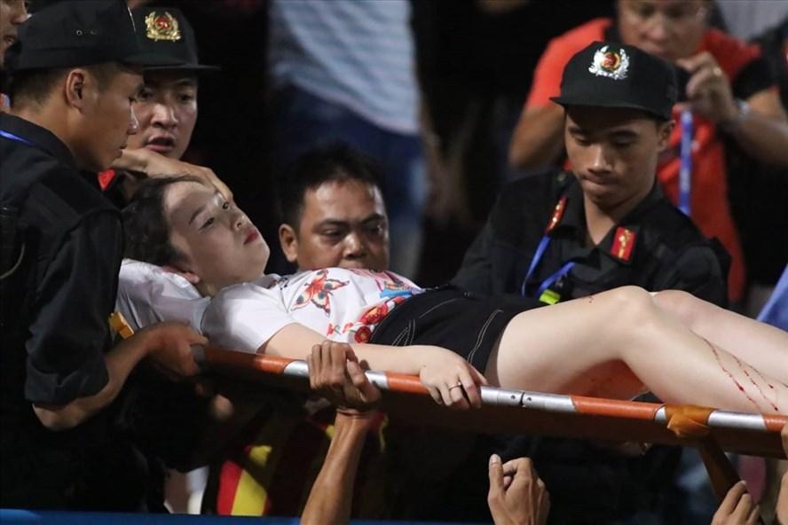 Nữ CĐV được đưa đi cấp cứu với vết thương khá sâu ở đùi phải. Ảnh: Trần Tiến