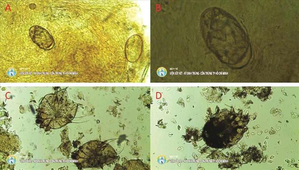 Trứng cái ghẻ (a,b), cái ghẻ trưởng thành (c,d) được tìm thấy trên bệnh nhân khám tại Viện Ký sinh Trùng - Côn Trùng TP.HCM. Ảnh: Viện Ký sinh Trùng - Côn Trùng TP.HCM