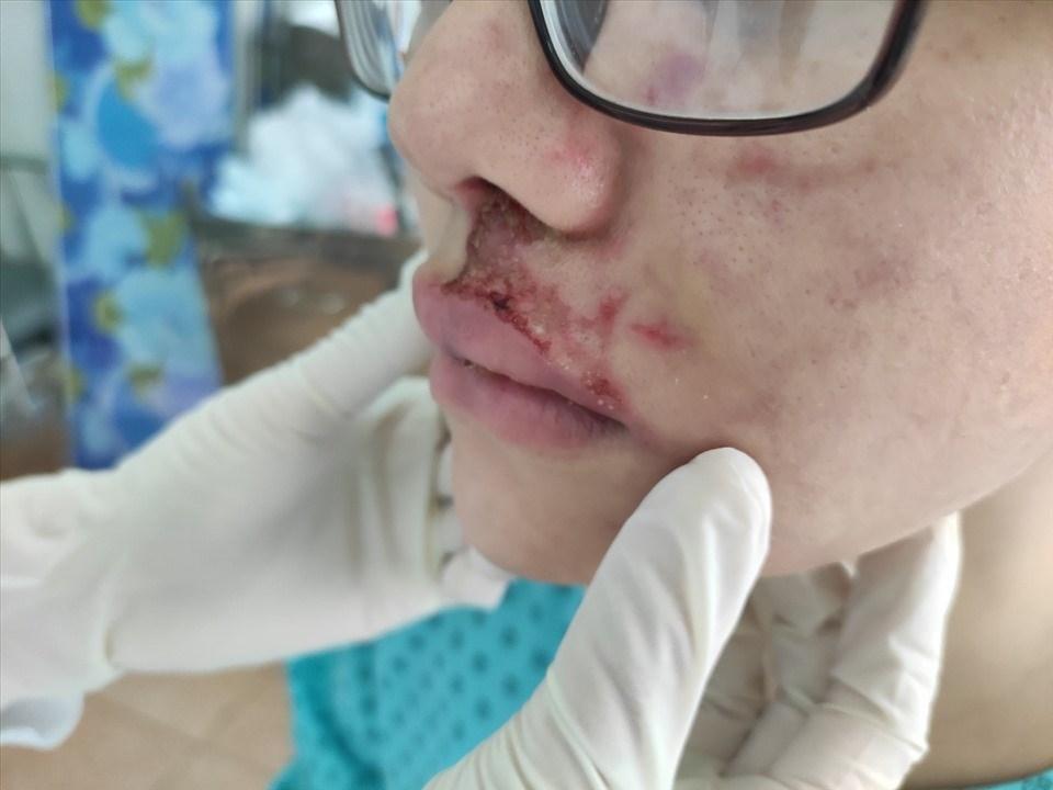 Một cô gái 26 tuổi sưng phù mặt, mưng mủ do tiêm filler làm đầy má ở thẩm mỹ viện. Ảnh: Bệnh viện Da liễu TPHCM