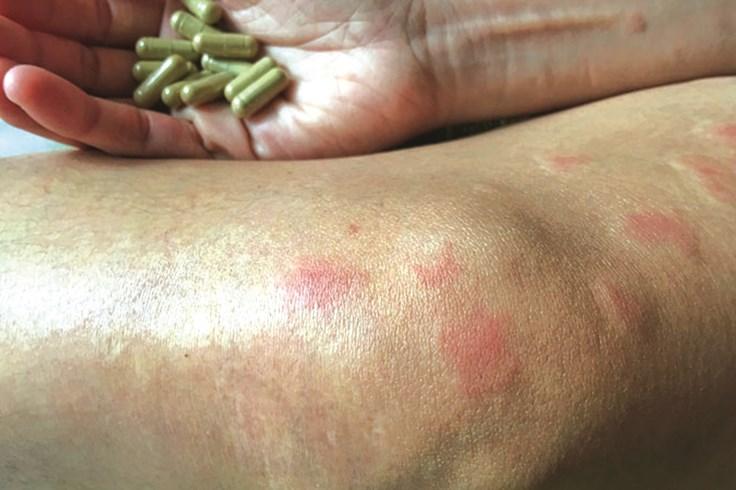 Bệnh lupus ban đỏ và phát ban trên da: Nguyên nhân do đâu?