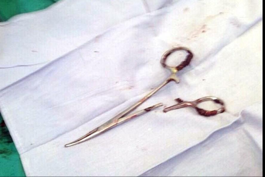 Chiếc kéo sau khi được lấy ra từ bụng bệnh nhân
