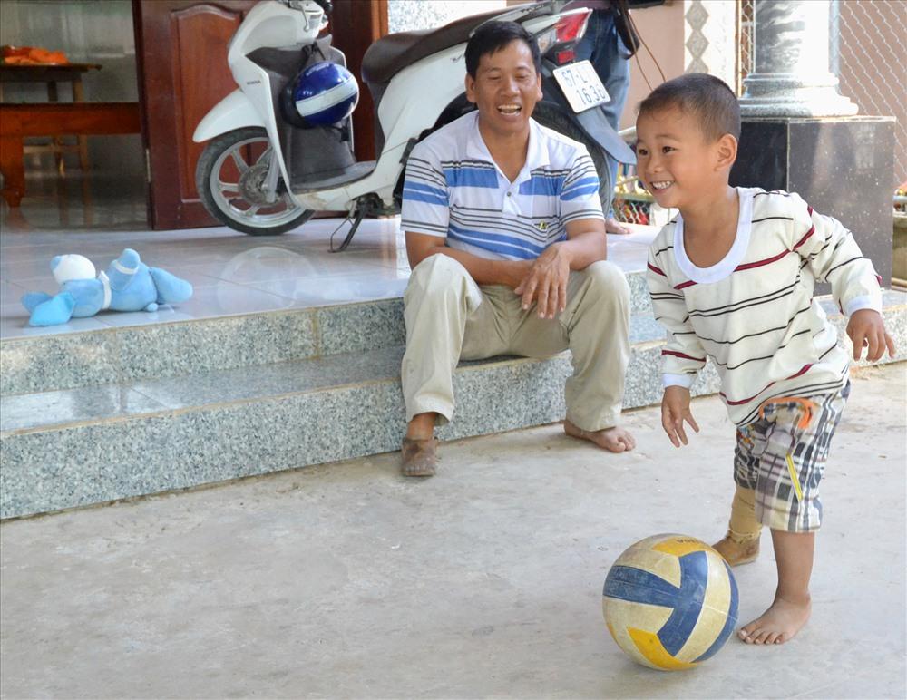 Sau 3 năm, thai nhi kỳ diệu đã là cậu bé hiếu động, dù phải đi bằng 1 chân giả.