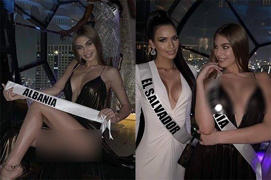 Người đẹp Albania bị chỉ trích vì khoe thân phản cảm ở Hoa hậu Hoàn vũ.