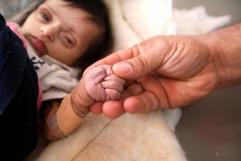 """Cảnh tượng ở miền Nam Yemen, nơi đang được lực lượng chính phủ kiểm soát, và một số khu vực trên khắp nước mà Liên Hợp Quốc cảnh báo là dễ rơi vào nạn đói nghiêm trọng là một """"quang cảnh của sự khốn cùng"""". Trong hình là Jood Motaher 2 tháng tuổi suy dinh dưỡng được một y tá nắm tay. Hai ngày sau đó, Jood Motaher đã qua đời. REUTERS."""