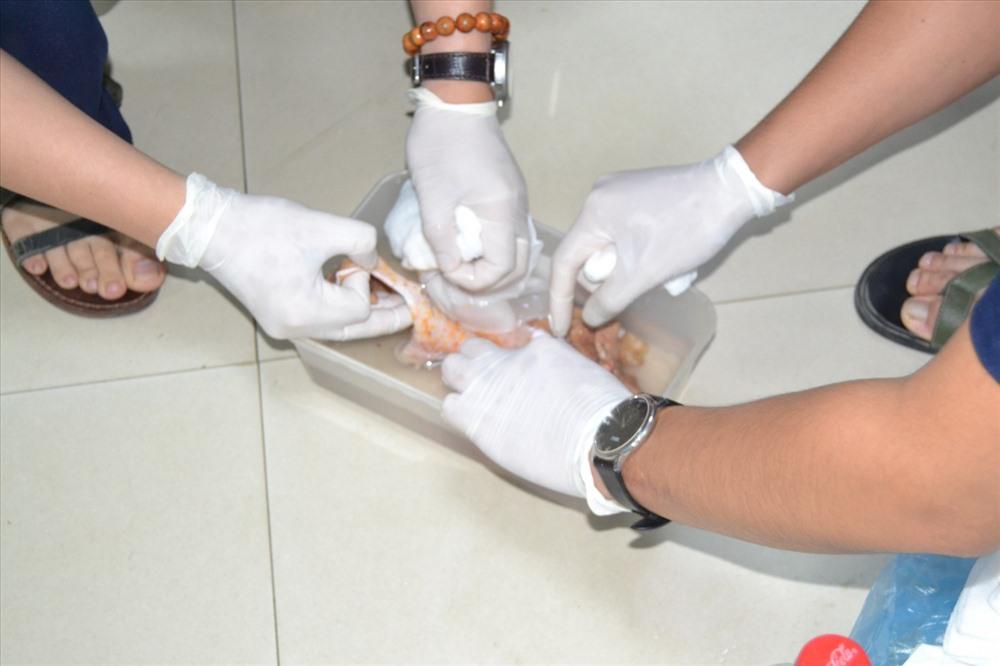 Phần da của bệnh nhân bị lột được người nhà bảo quản mang đến bệnh viện. Ảnh: benhvienhungvuong.org