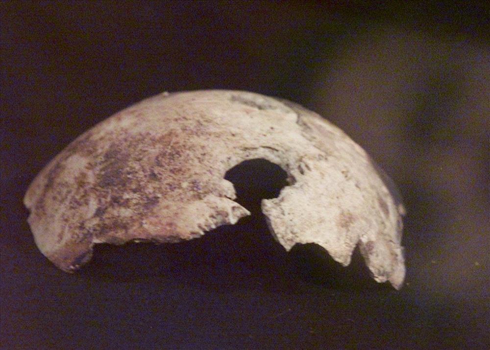 Mảnh xương sọ được cho là của Hitler, với một lỗ thủng khả năng do đạn bắn.