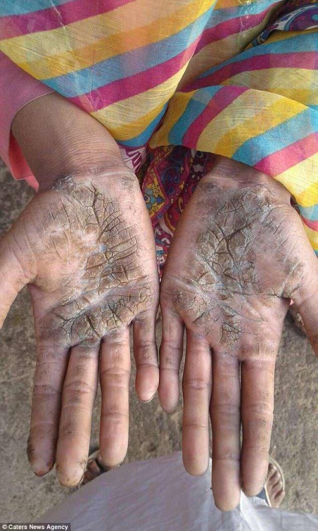 """Ngay cả bàn tay cũng bị """"hóa đá"""". Ảnh Daily Mail"""