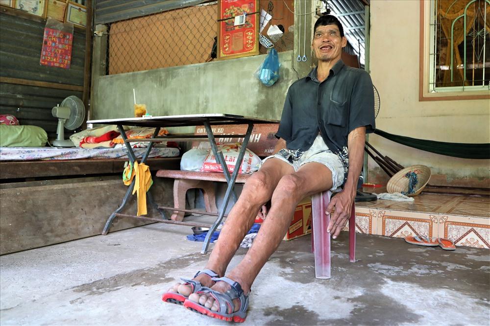 Cao hơn 2m, nặng hơn 100kg nên chả có quần áo nào ông mặc vừa, gia đình phải mua vải rồi dẫn ông ra tiệm để thợ may riêng. Bàn chân ông dài hơn 30cm nên cũng chẳng có giày dép nào mang vừa. Thương ông suốt ngày đi chân đất dẫm mảnh chai chảy máu, mấy người em dẫn ông đến thợ giày để đóng đôi dép nhưng mang vài bữa lại hỏng. Ảnh: Trường Sơn