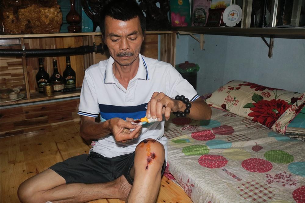 Dù đang bị thương, nhưng ông Trần Văn Hoàng vẫn ứng trực trong các ngày lễ để bắt cướp.