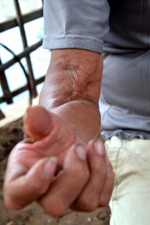 Ngoài tuổi cao (65 tuổi) ông Ẩn còn có ánh tay bị tật, cử động yếu và khó nên không làm được nhiều việc nặng. Ảnh: Lục Tùng
