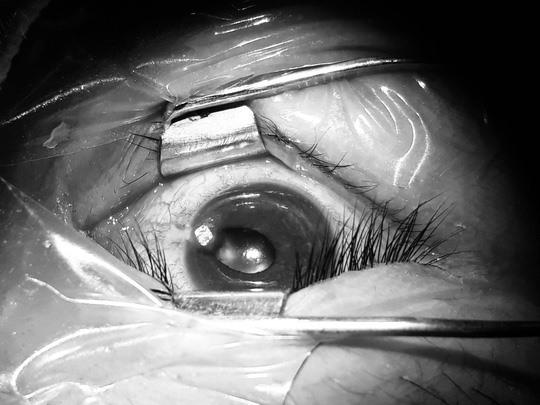 Chiếc đinh uốn cong cắm sâu trong mắt bệnh nhân. Ảnh: BVCC.