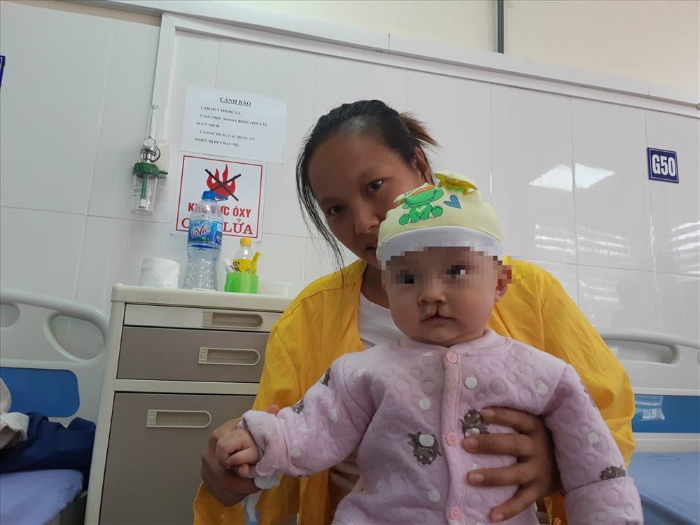 Một em bé bị dị tật khe hở môi vòm miệng. Ảnh: Thùy Linh