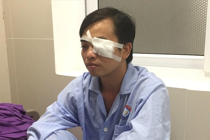 Bs Sơn hiện đang được điều trị vì chấn thương nặng vùng mắt. Ảnh: Lê Phi Long