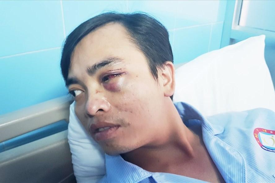 Vùng mắt BS Sơn bị tổn thương nặng do bị hành hung. Ảnh: Lê Phi Long