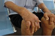 Phát hiện hàng loạt ca mắc bệnh gout ở người trẻ tuổi