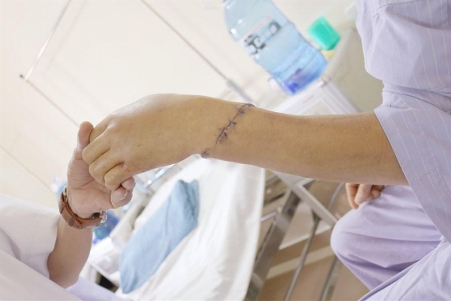 Phần cẳng tay của bệnh nhân da đã hồng hào, các ngón tay cử động được