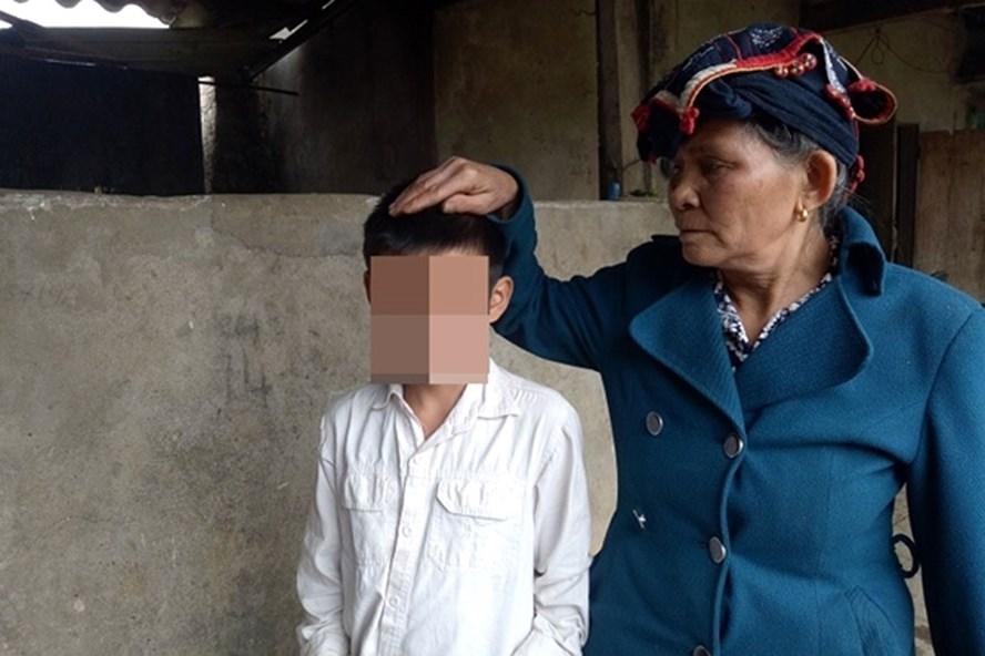 Bà Vì Thị Loan (bà nội cháu Q) không tin nổi tại sao cháu lại bị đánh nặng như vậy.