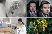 Một vòng bệnh viện: Bệnh loét da 'ăn thịt người' bí ẩn xuất hiện ở Úc