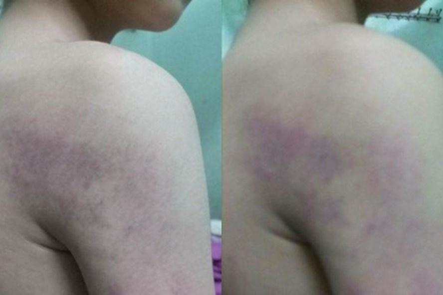 Học sinh lớp 1 bị cô giáo đánh bầm tím người.