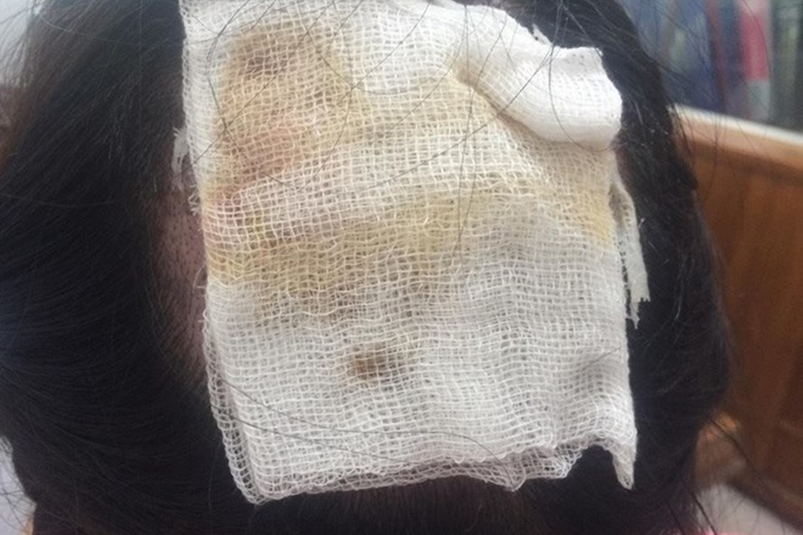 Để có tóc ở sẹo bỏng 120cm2 của BS H không dễ.