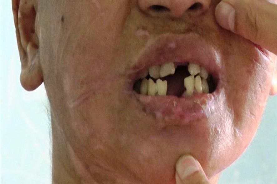 Y Nhiêu bị bà Hà tra tấn bằng cách dùng kìm bẻ răng. Ảnh MT