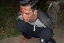 Bốn cán bộ có nguy cơ phơi nhiễm HIV khi bắt đối tượng trộm cây sưa