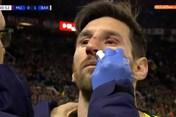 """Trận MU vs Barca: Messi """"vỡ mũi"""" sau cú gạt tay của trung vệ Smalling"""