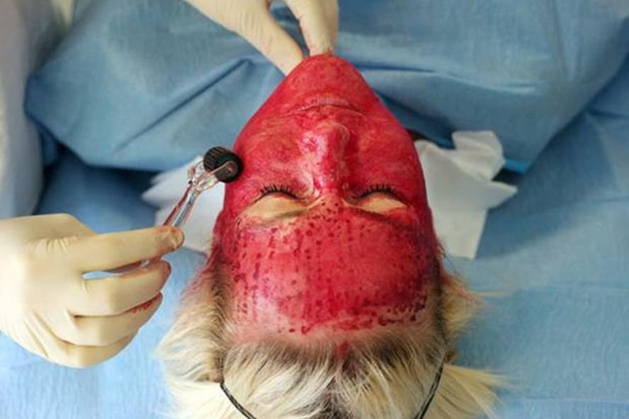 """Người sử dụng dịch vụ """"mặt nạ ma cà rồng"""" có thể bị truyền nhiễm các bệnh lây qua đường máu, nhất là HIV."""