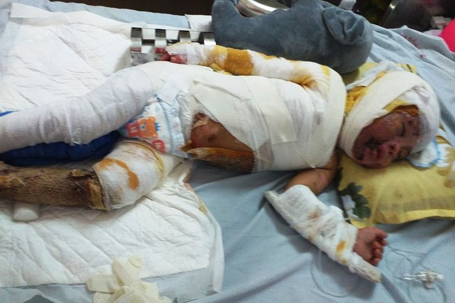 Cháu Lê Gia Bảo, hiện đang được điều trị tại Bệnh viện Bỏng Quốc gia.