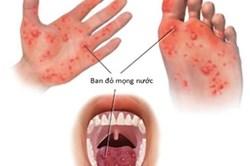 """Trước """"mùa bệnh"""", làm gì để phòng bệnh tay chân miệng cho trẻ nhỏ?"""