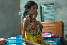 LD2038: Hãy giúp cô học trò nghèo bị ung thư được đến trường