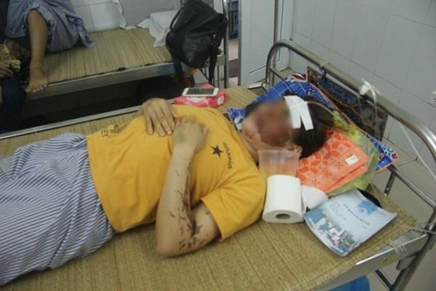 Chị Nh. đang điều trị tại bệnh viện với nhiều vết thương ở vùng mặt do axit gây ra. Ảnh: Đ.N