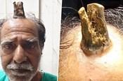 """Nóng nhất hôm nay: Cụ ông Ấn Độ mọc """"sừng"""" trên đầu"""